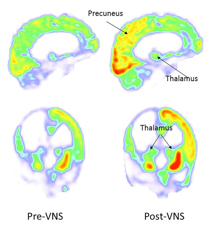 Brain scans of the patient showed increased activity in the right parieto-occipital cortex, thalamus, and striatum ...